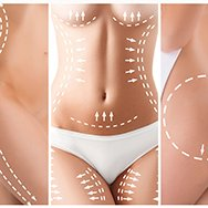 Liposuccion - Liposculpture