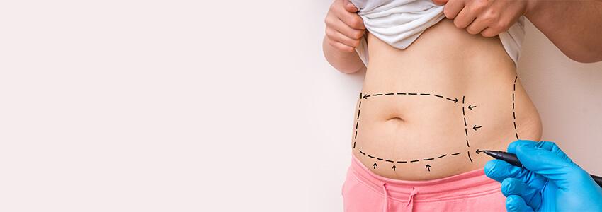 chirurgie plastique du ventre
